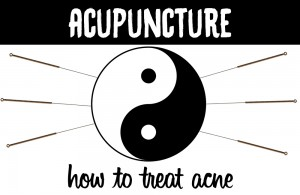 acne acupuncture treatment