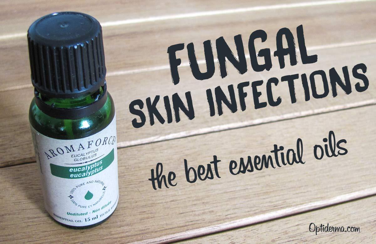 The Best Antifungal Essential Oils