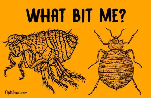 Bed Bug Bites vs Flea Bites - What Bit Me ?