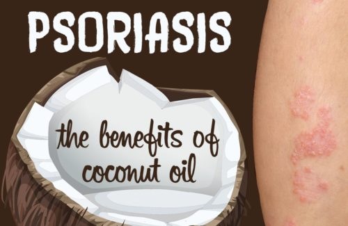 The Benefits of Coconut Oil for Psoriasis