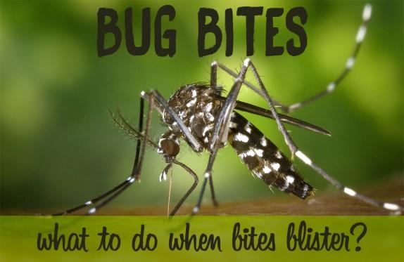 Bug bites that blister: Mosquito, Spider, Bed Bug Bites