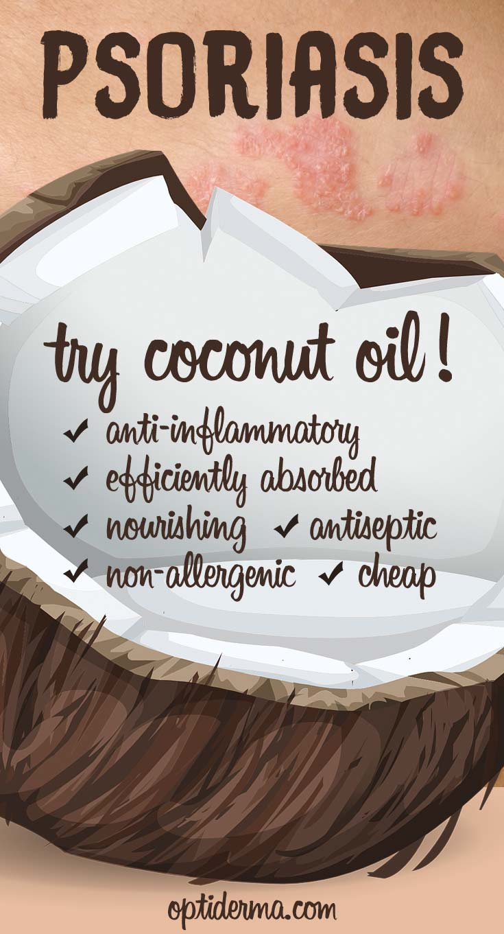 Why Use Coconut Oil for Psoriasis?