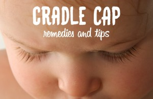 cradle cap remedies