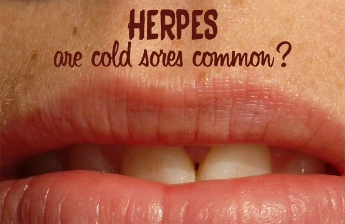 Do most people get cold sores?