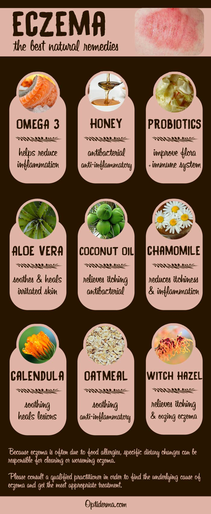 honey eczema cream