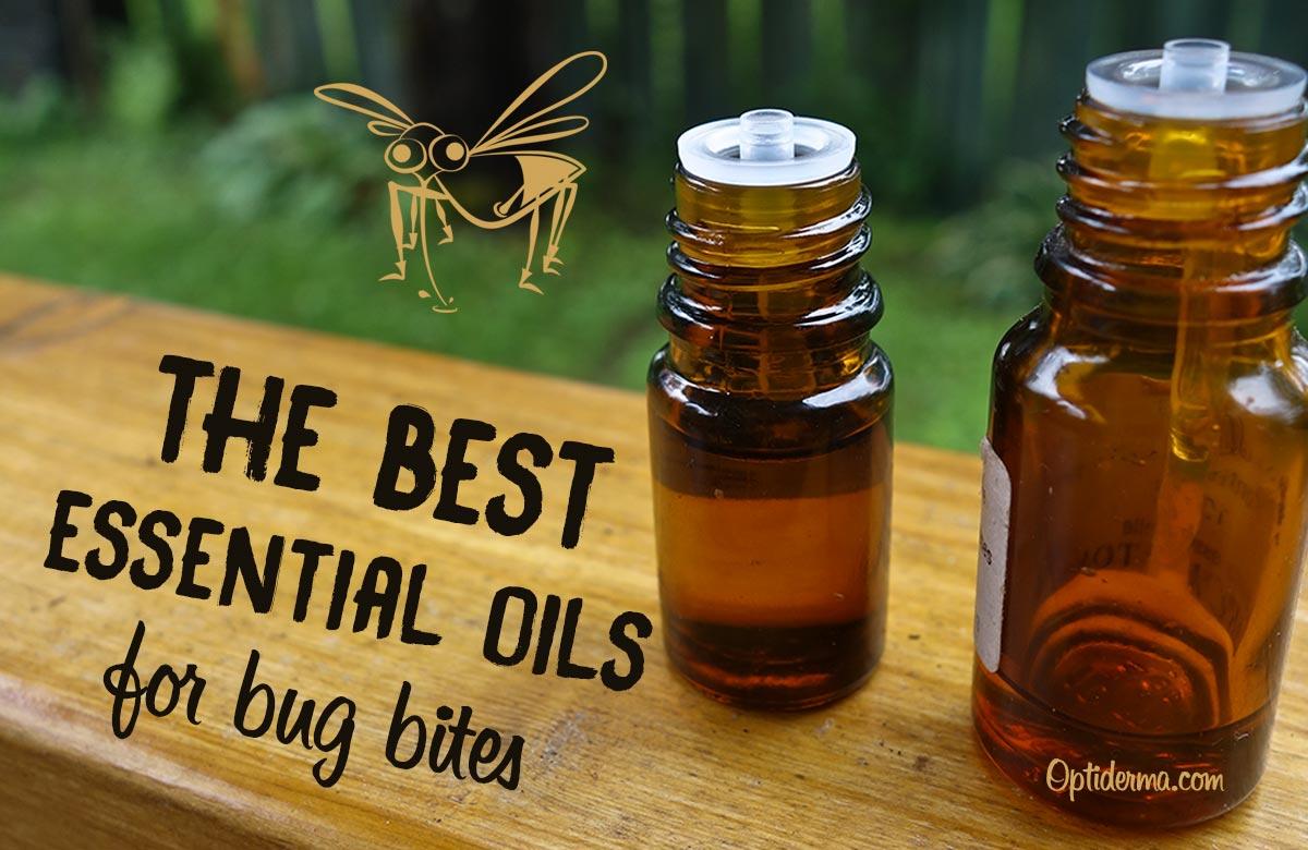 Best Essential Oils for Bug Bites