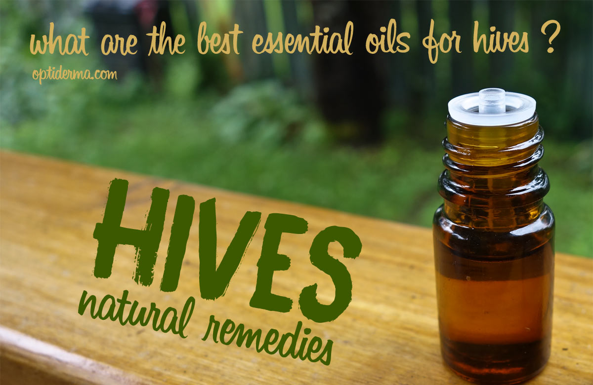 Essential Oils For Hives Try Lavender Coconut Oil