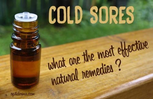 Best Essential Oils for Fever Blisters