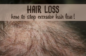 Chronic hair loss in males