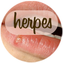 Remedies for Herpes