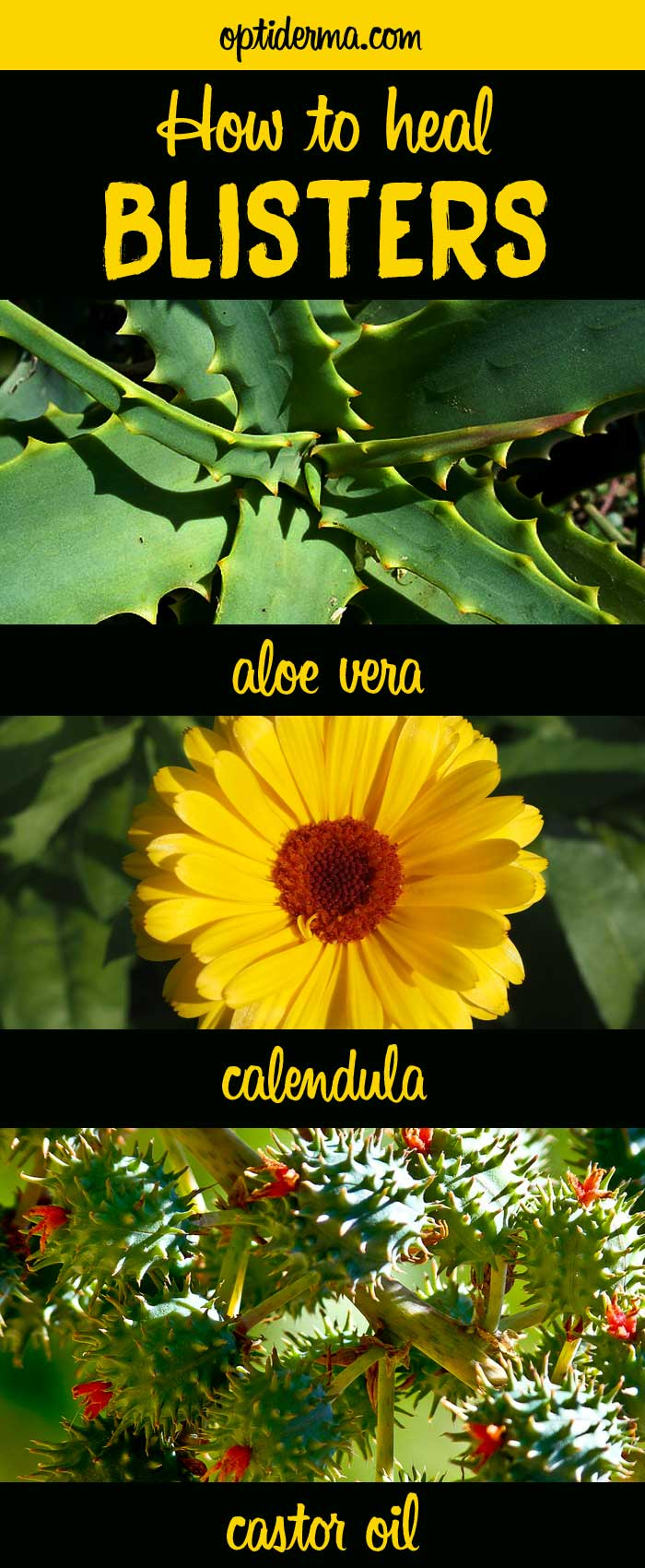 How to Heal Blisters with Calendula, Aloe Vera or Castor Oil