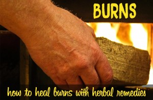 Burns and herbal remedies