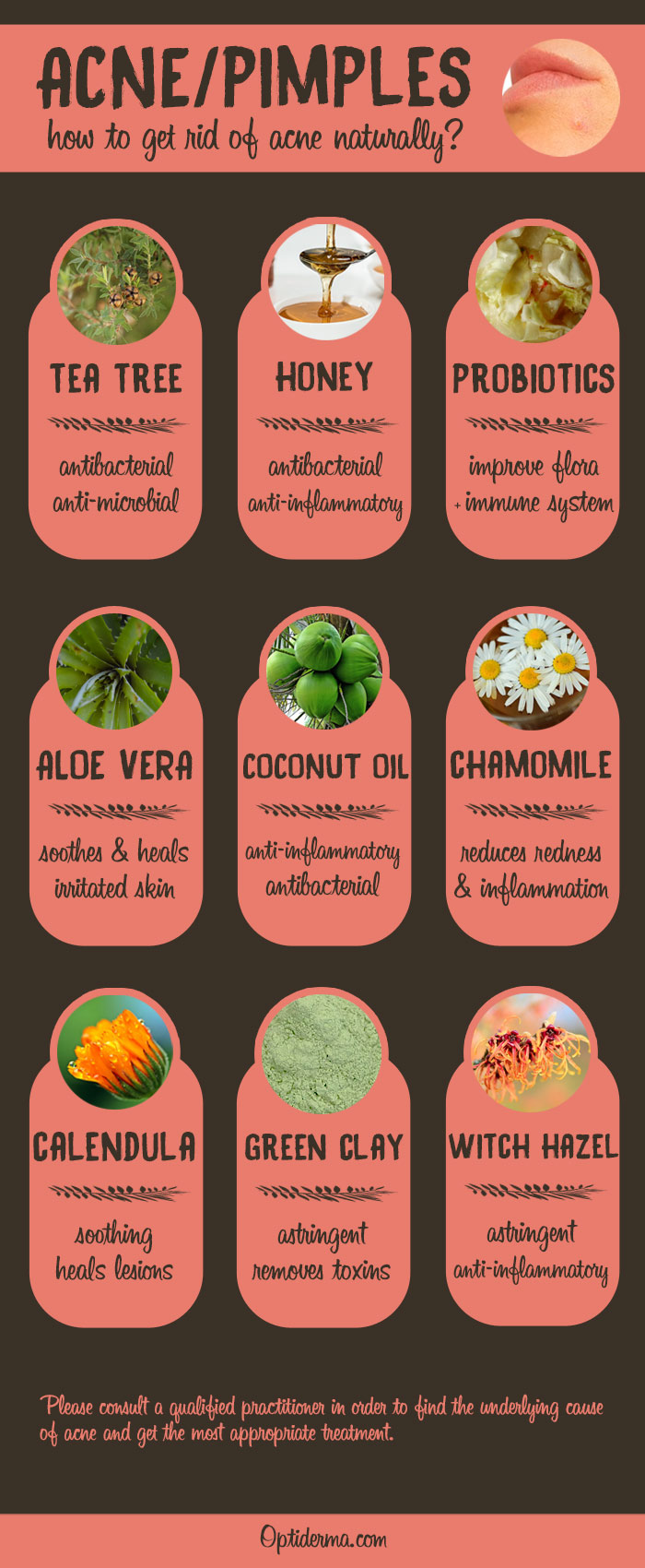 Natural Remedies for Acne - Infographic