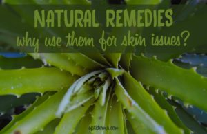 Natural Remedies for Skin Issues: Why Use Natural Remedies?