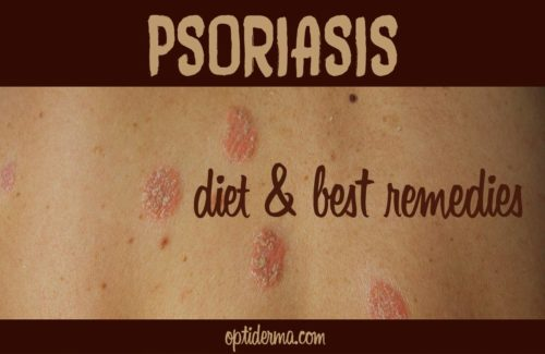 Psoriasis: Diet & Remedies