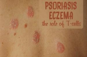 psoriasis eczema immune