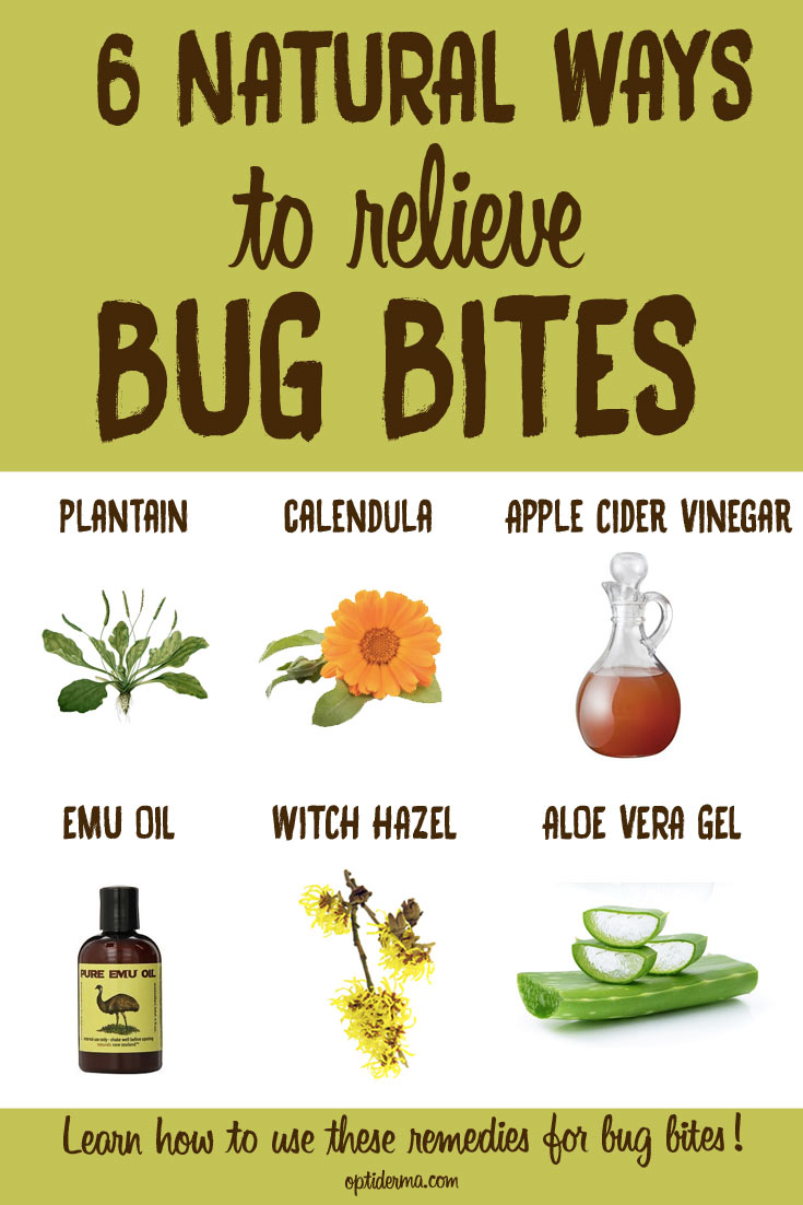 Remedies to relieve bug bites that blister