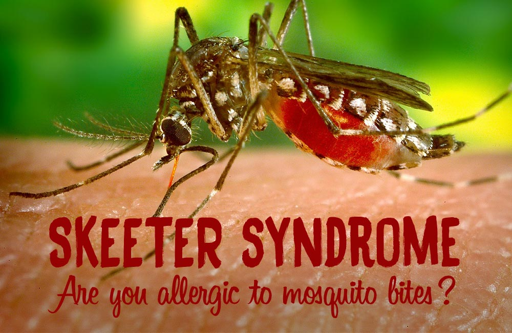 Skeeter Syndrome Symptoms Amp Best Remedies For Mosquito Bites