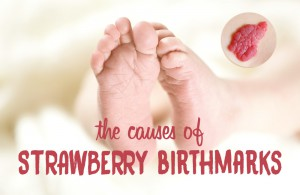 strawberry birthmarks infant