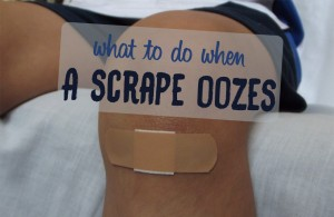 What to Do when a Scrape Oozes?