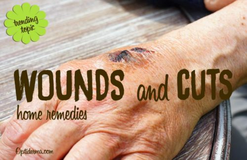 wounds-cuts
