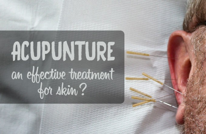 acupuncture for skin