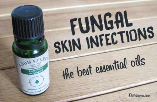 The Best Antifungal Essential Oils