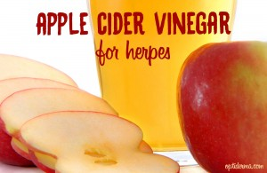 How to use apple cider vinegar for herpes