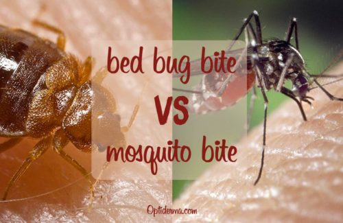 Bed Bug Bites vs Mosquito Bites