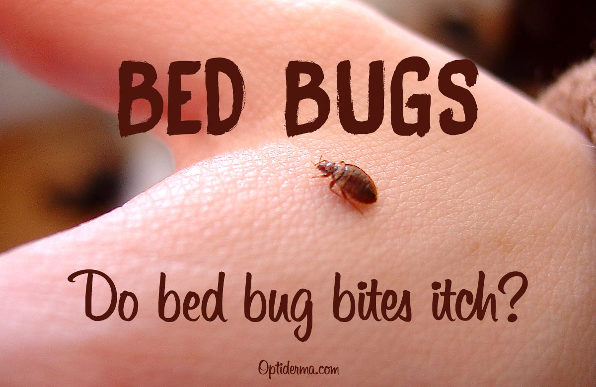 Do Bed Bug Bites Itch?