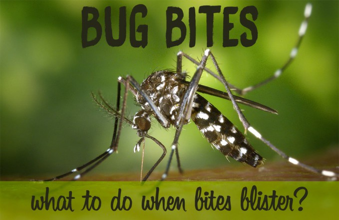 Bug bites that blister: Mosquito, Spider, Bed Bug Bites
