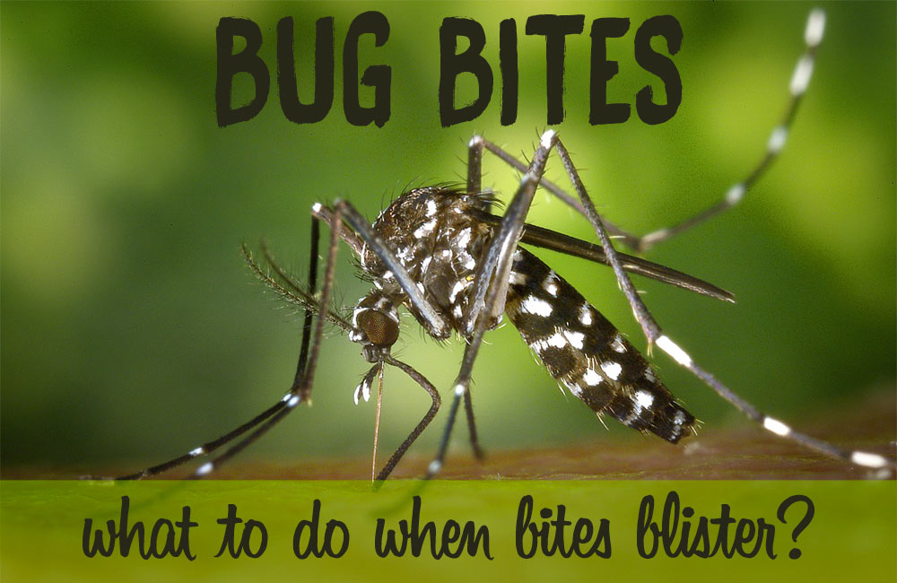 Do You Have A Bug Bite That Blisters Learn How To Soothe Insect Bites
