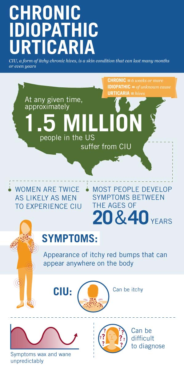 How Long Do Hives Last? Chronic Urticaria Duration & Symptoms - Infographic