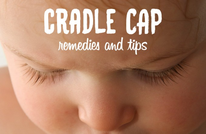 How to treat cradle cap