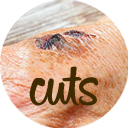Remedies for Cuts & Wounds