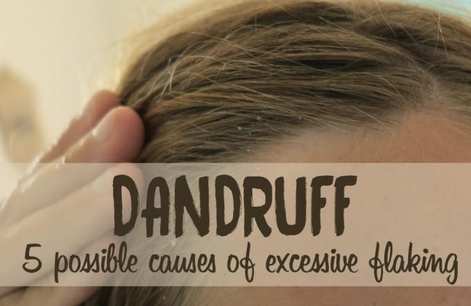 why do I have dandruff