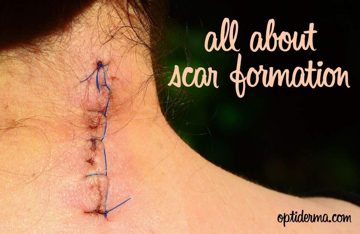 So All Cuts Scar?