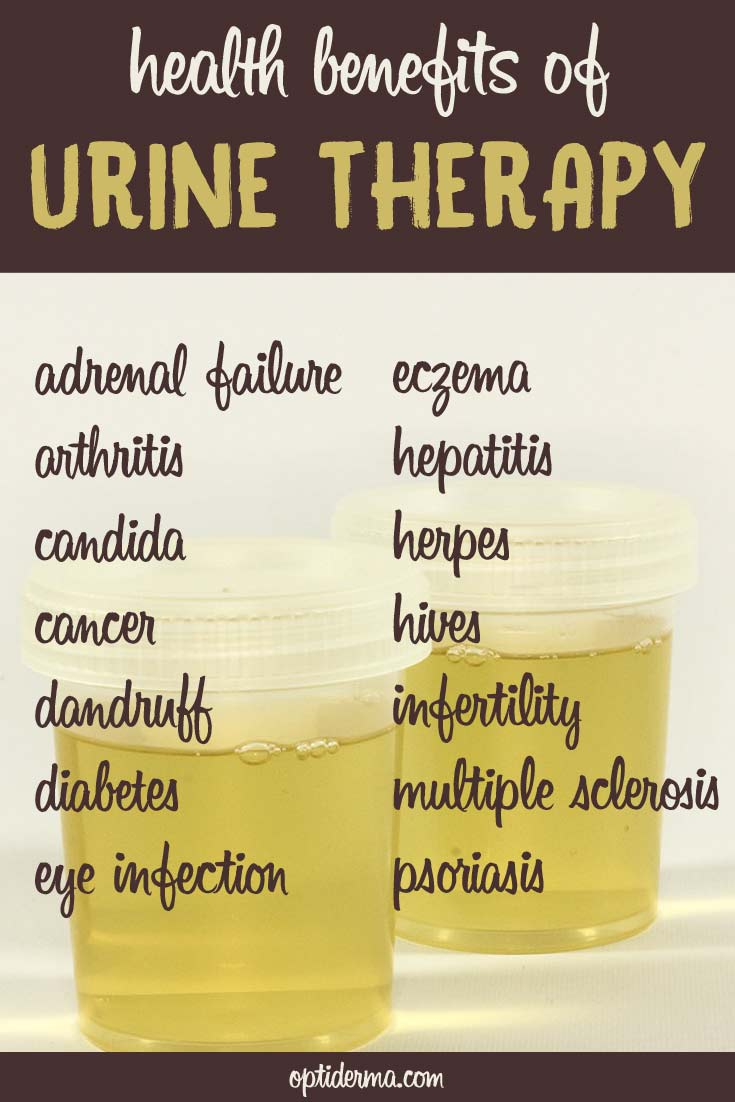 Urine therapy using urine for medicinal purposes for Cocktail urine