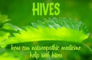 hives urticaria naturopathy