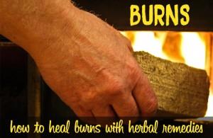 Herbs for Burns