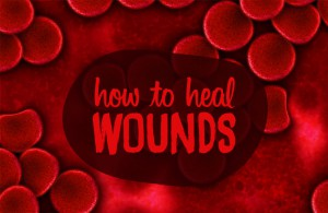 How to heal wounds faster