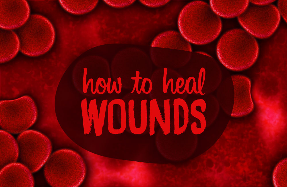 Natural Remedies For Cuts And Wounds