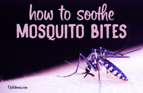 Lavender Essential Oil for Mosquito Bites - How to Soothe Bug Bites