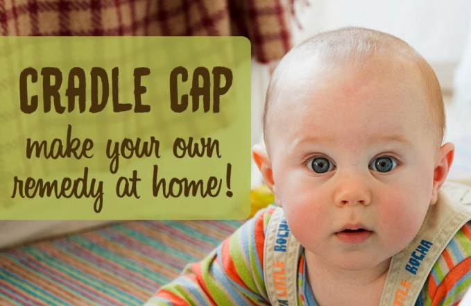 Oil remedy for cradle cap