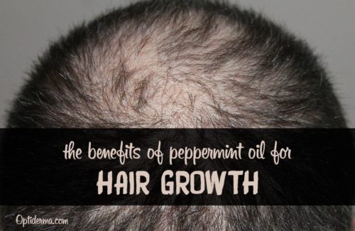 Peppermint Oil for Hair Loss