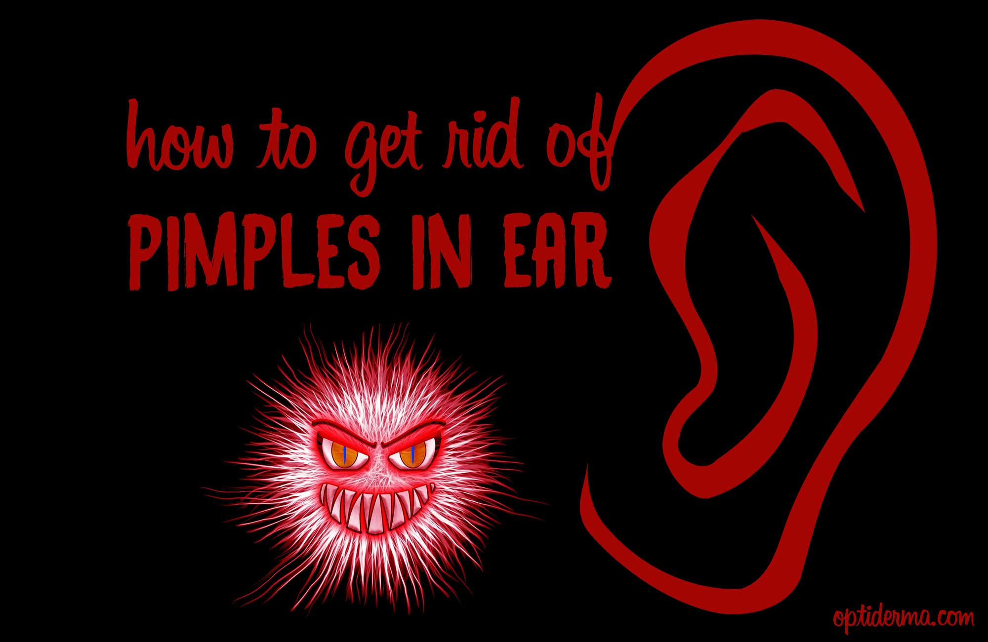 How To Relieve Sore Zits In Ear Amp Get Rid Of Pimples