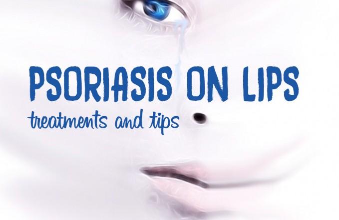 Psoriasis on lips