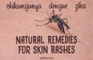 skin rashes caused by zika, chikungunya, dengue