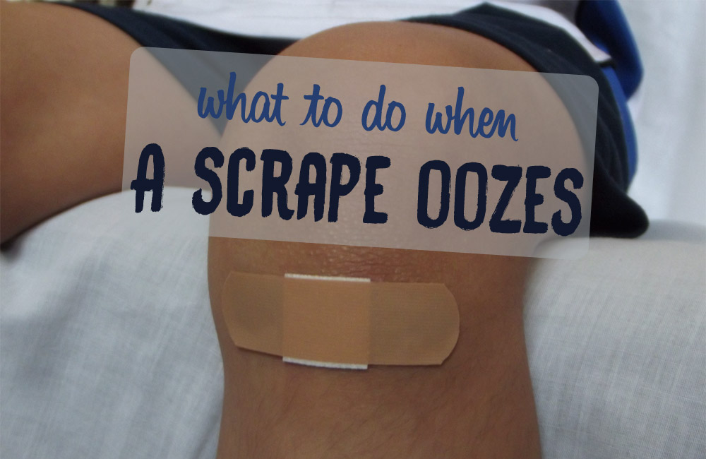 Oozing Scrape: What to Do to Heal Faster? Powerful Remedies