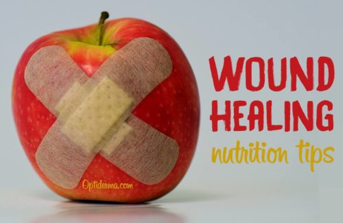 Nutrition for Wound Healing: The Best Foods & Supplements for Wounds